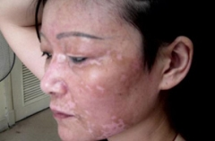 白癜风白斑的发病与哪些因素有关